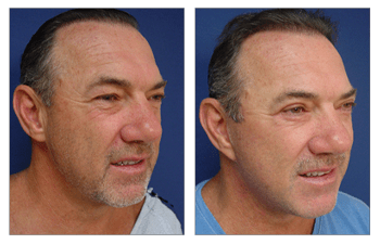 Before and after image of a patient after a proper facelift preparation