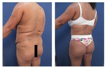 Before and After image of a Lateral Hip Dip surgery