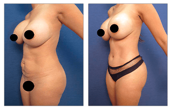 Why BBL revision cannot be performed following Laser Liposuction