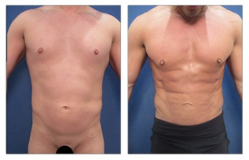 Best male abdominal etching frame grab