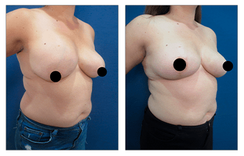 how to fix breast herniation before and after