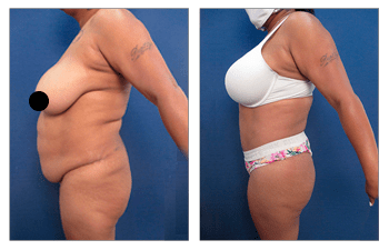 High definition body contouring for the plus size patient.
